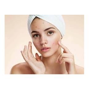 Sérum anti-acné