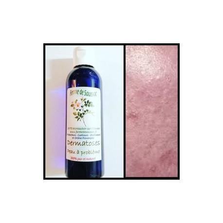 Dermatoses peau à problèmes (synergie d'hydrolats)